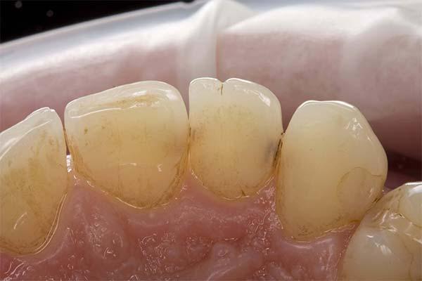 Сонник карієс на зубах: до чого сниться і що означає сон про зубний карієс
