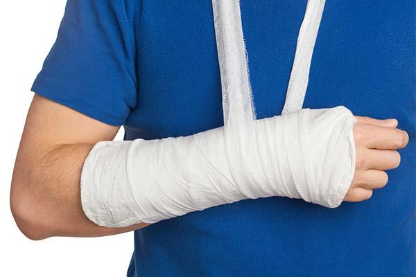 Сонник зламана рука: до чого сниться і що означає сон про зламану руку