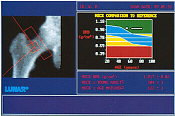Рентгенівська денситометрія кісткової тканини тазостегнового суглоба. Норма.