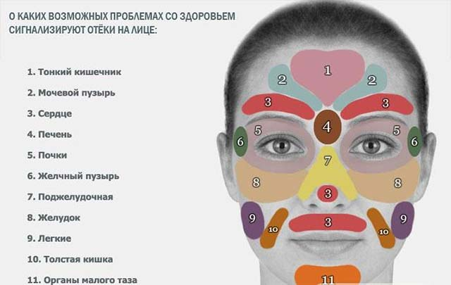 Про які проблеми зі здоров'ям говорять набряки на обличчі