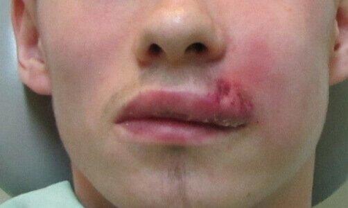 фото фурункула на губі