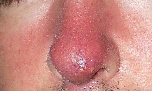 фото фурункула в носі