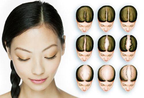 Випадіння волосся (алопеція, облисіння) у чоловіків і жінок