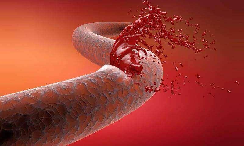 Через часті коливань тиску стінки судин слабшають