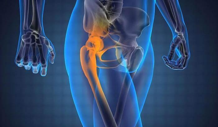 Біль у стегні і тазостегновому суглобі