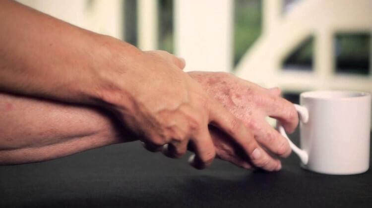 Різновиди і форми хвороби Паркінсона