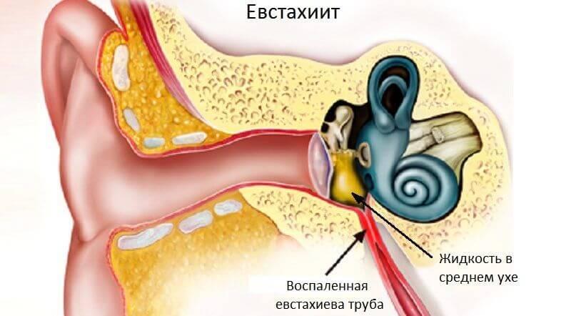 Тубоотит (він же євстахіїт)