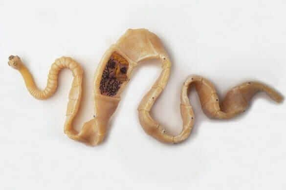 Фотографії гельмінтів (глистів) у людини