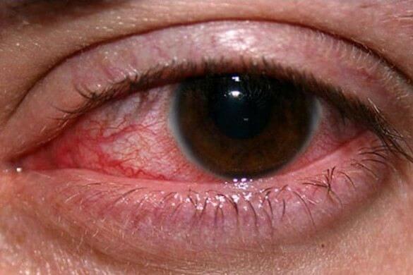 Фотографії глистів в очах