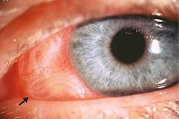 Фотографії глистів в очах у людини