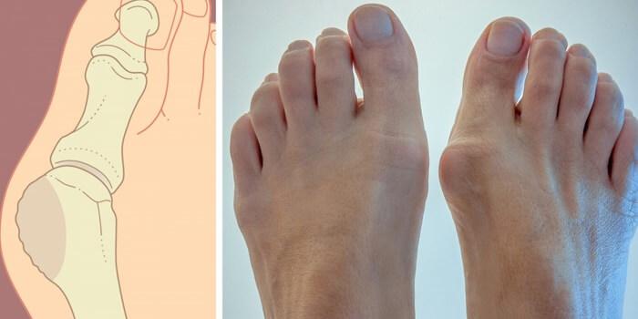 Кісточка на нозі (вальгусна деформація): лікування