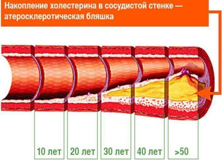Способи профілактики атеросклерозу судин