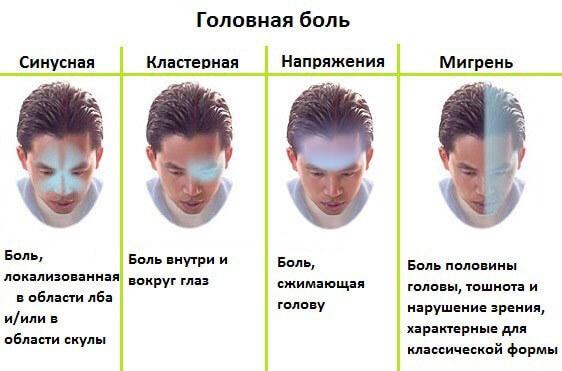 Види головного болю по зонам