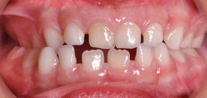 Неправильний прикус дитячих зубів