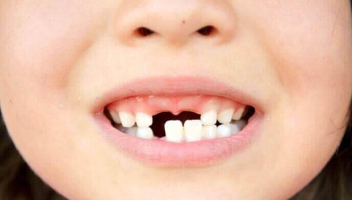 Коли починають випадати молочні зуби у дітей?