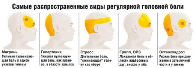 Зони локалізації головного болю і можливі причини