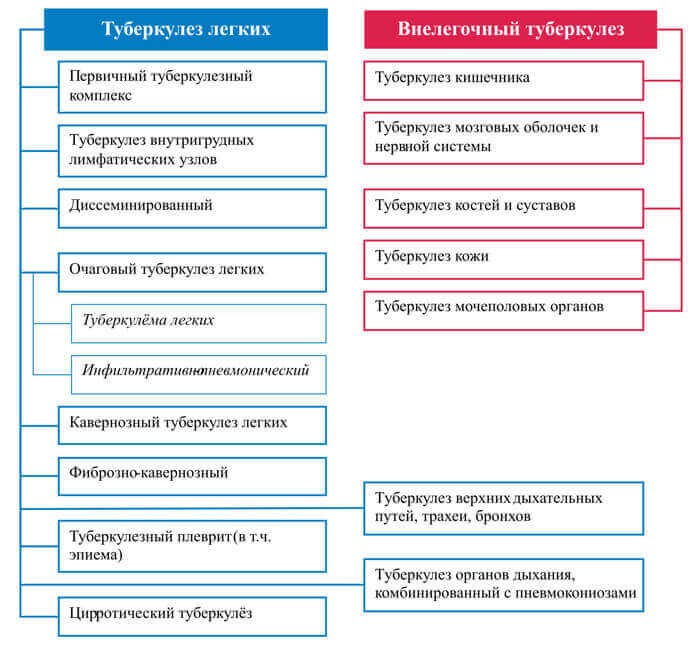 Класифікація туберкульозу