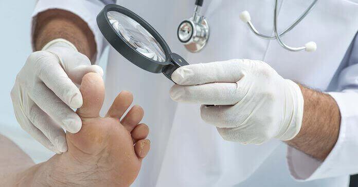 Які лікарі лікують грибок нігтів?