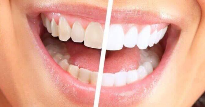 Як відбілити зуби в домашніх умовах без шкоди і чи можливо це взагалі?