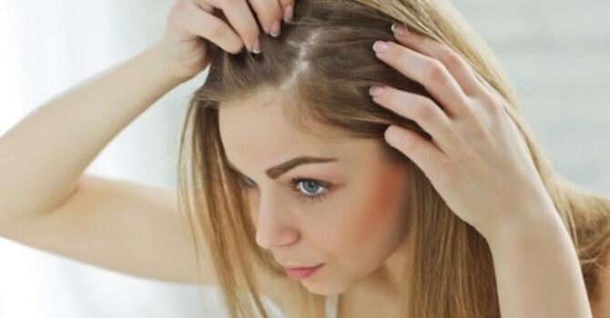 Випадає волосся лікування