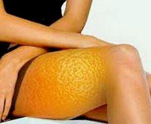Симптоми і причини целюліту