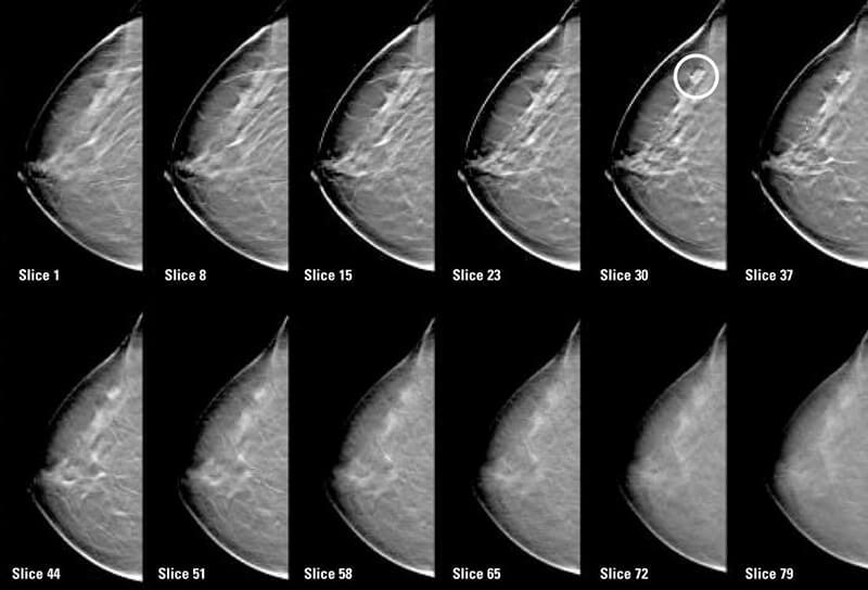 Маммография в медицинском центре R+