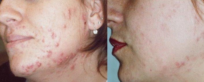Чистотіл від прищів (акне) на обличчі й тілі