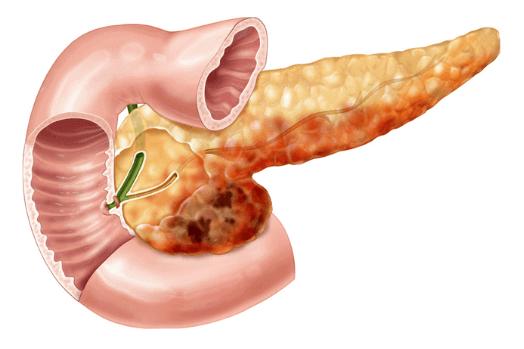 Гострий панкреатит