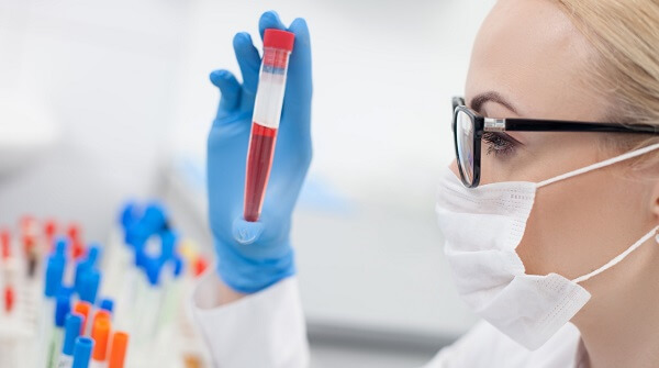 Розшифровка аналізу крові у дітей: загальний аналіз