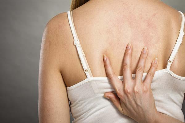 Сонник алергія: до чого сниться і що означає сон про алергію