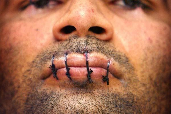 Сонник зашитий рот: до чого сниться і що означає сон про зашитий рот