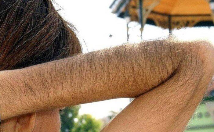 Як освітлити волосся на руках: домашні засоби