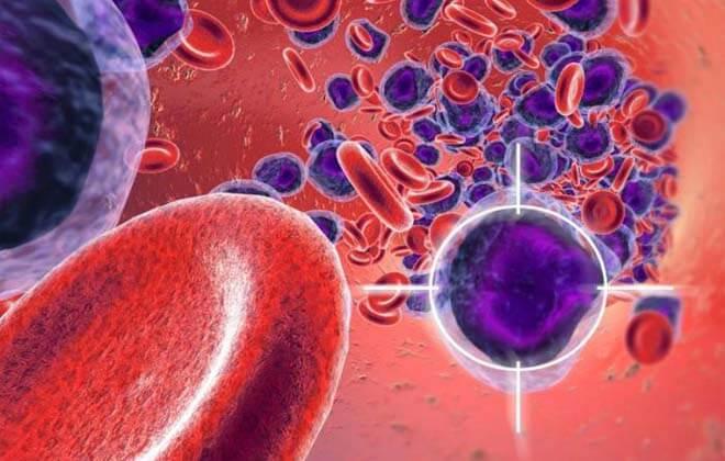 Ювенільний мієломоноцитарний і волосатоклітинний лімфоцитарний лейкоз