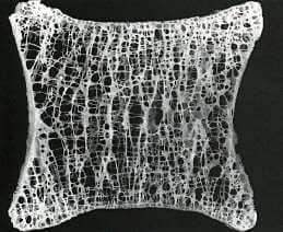 Анатомический препарат тела позвонка. Видны Начальный остеопороз костей