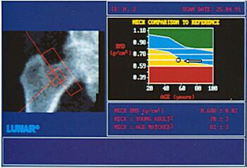 Рентгенівська денситометрія кісткової тканини тазостегнового суглоба. Остеопороз.