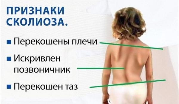 Причини викривлення хребта у дітей