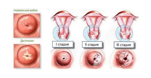 3 ступеня дисплазії шийки матки
