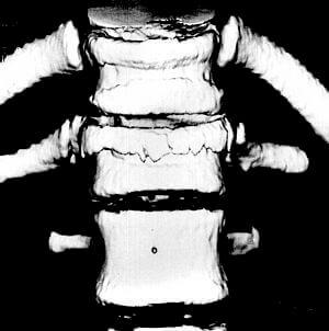 Тривимірне КТ-зображення патологічних переломів хребців у передньо-задній проекції.