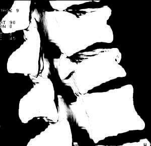 Тривимірне КТ-зображення патологічних переломів хребців в бічній проекції.и