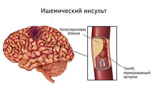 Ішемічний інсульт: причини, симптоми, лікування