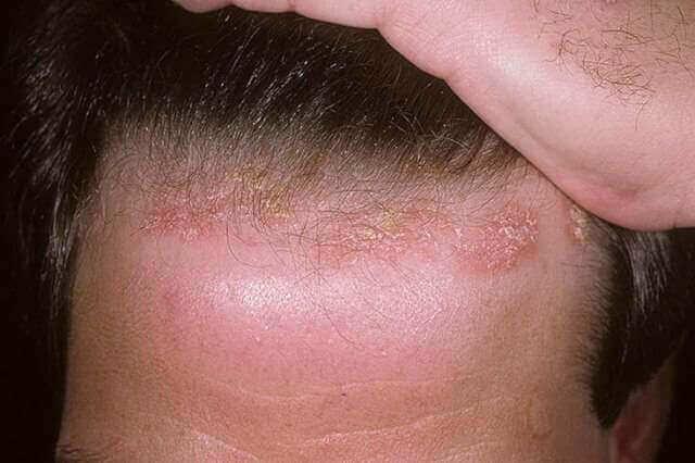 Псоріаз на волосистій частини голови