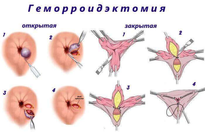 Стадії розвитку геморою
