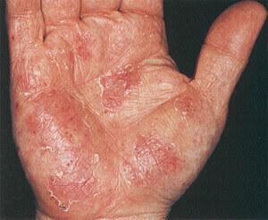 Ознаки авітамінозу на руках