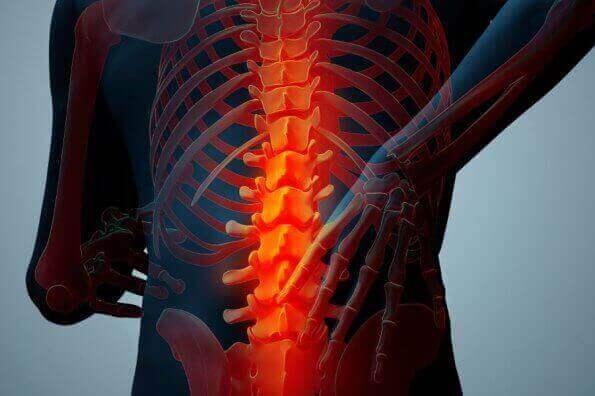Хвороба Бехтерєва: причини, симптоми та лікування
