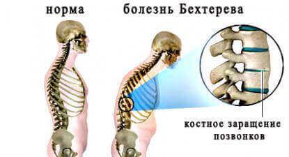 Анкілозуючий спондилоартрит або Хвороба Бехтерєва