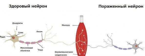 Відмінність хворого нейрона від здорового