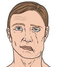 Параліч м'язів обличчя