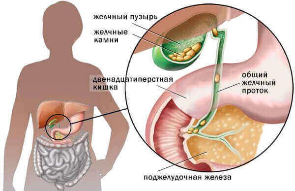 Причини холециститу