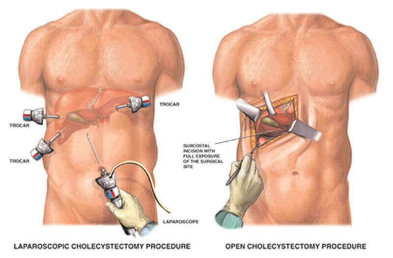 Лікування холециститу (холецистектомія)