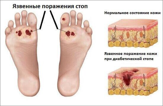 Синдром діабетичної стопи